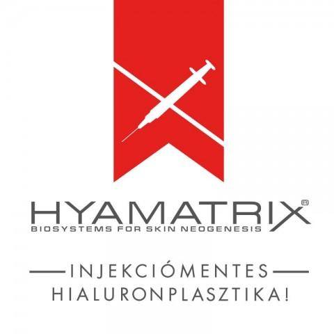 hyaluronplasztika